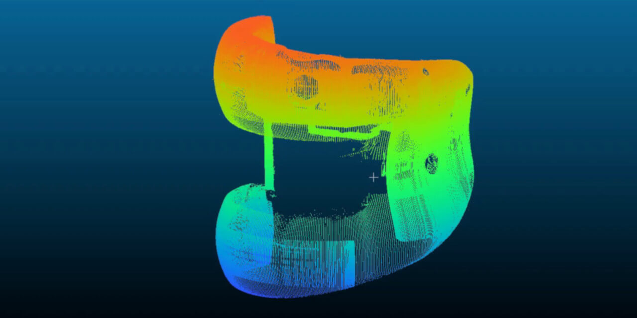 orthopaedic knee joint measurement scan dw fritz zero touch
