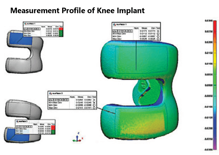 dw fritz prthopaedic knee joint scan with measurements